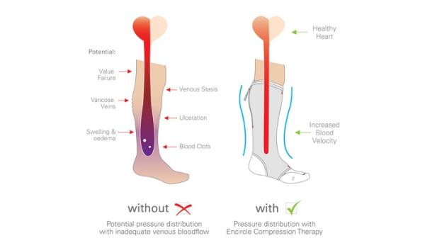 Venous thrombosis mechanism