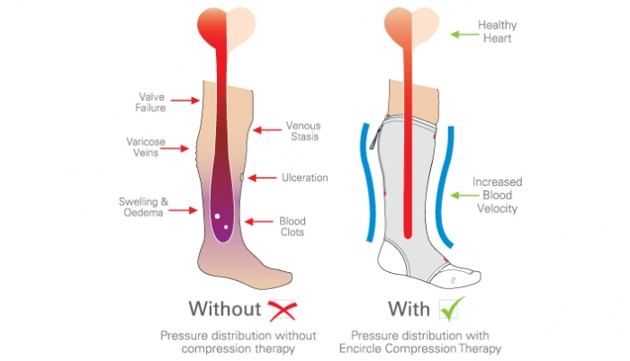 skin ulcer diagram how compression works » encircle medical